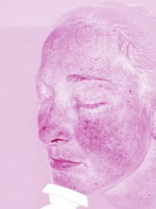 Reveal camera skin blemishes