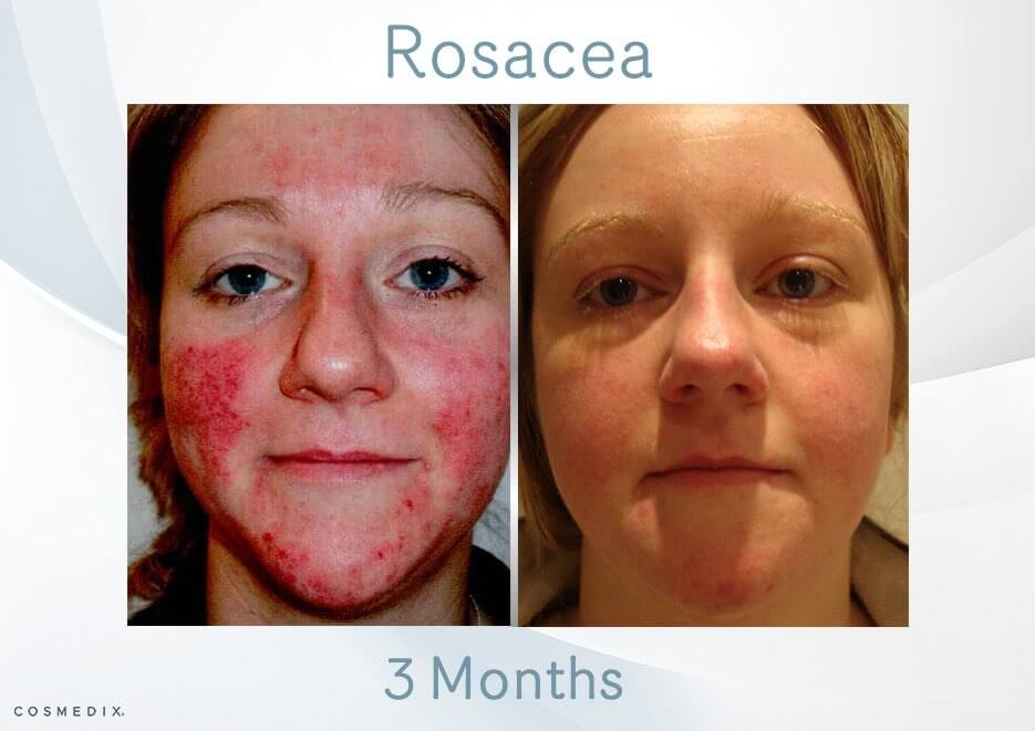 Learn How To Treat Acne Rosacea & Key Differences to Acne