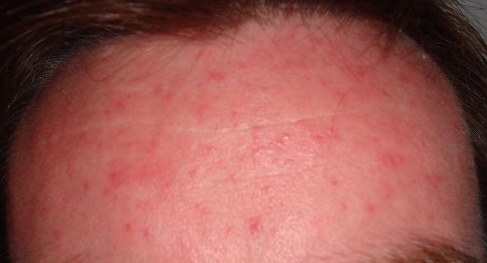 acne rosacea on forehead