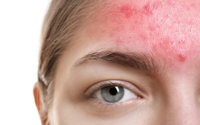 How To Treat Acne Rosacea