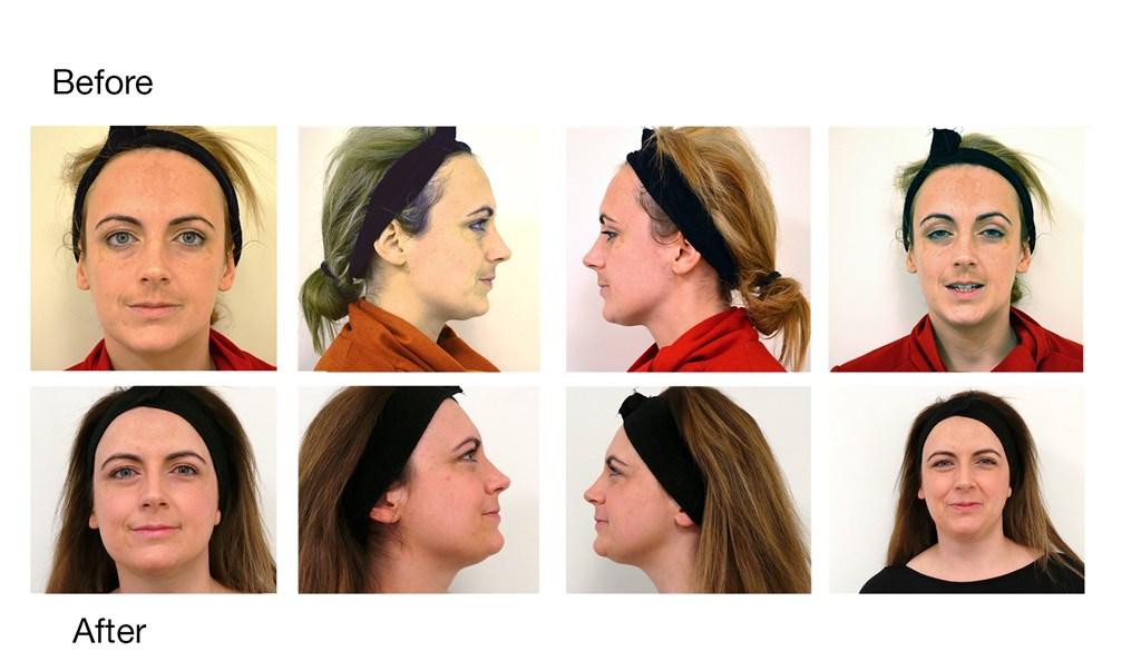 Metabolic Peels Hyperpigmentation Melasma