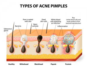 Blocked pores are caused by a number of factors including dehydration.
