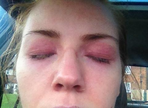 retinol over stimulation